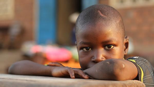 Des enfants marqués physiquement et psychologiquement par le conflit © Unicef